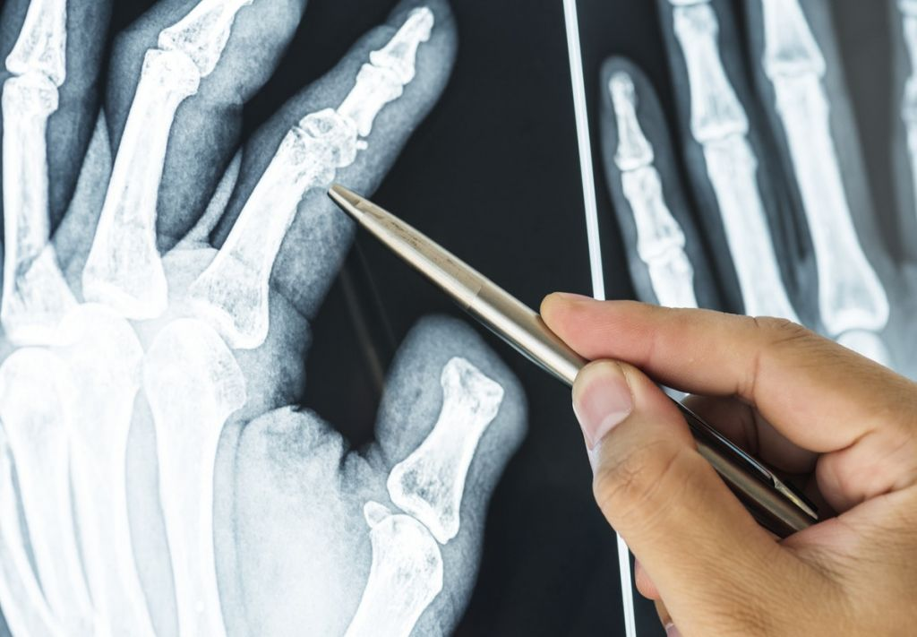 x-ray of finger joints