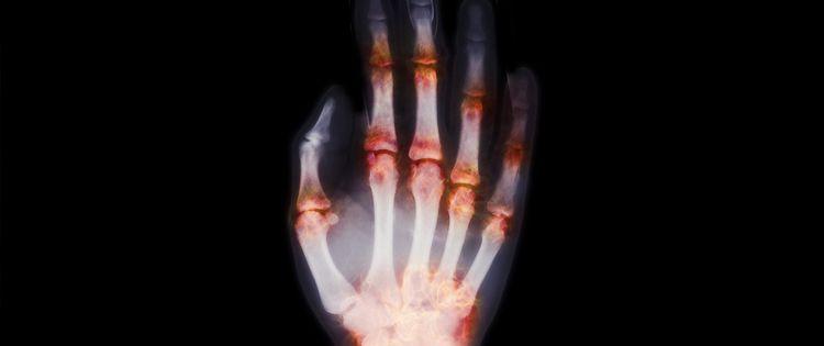 Managing Arthritis with Cannabis
