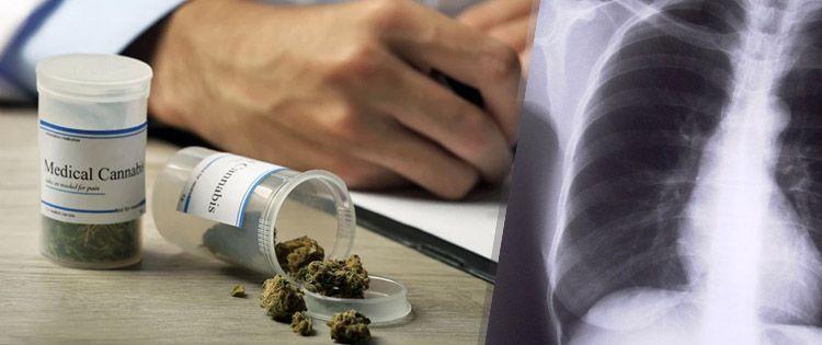 cannabis for bone health