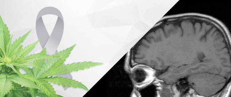 Cannabis Extracts Increase Survival of Brain Cancer Patients