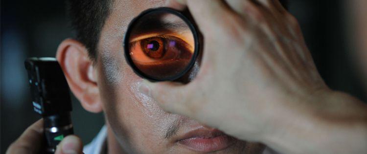 Marijuana Red Eye Phenomenon
