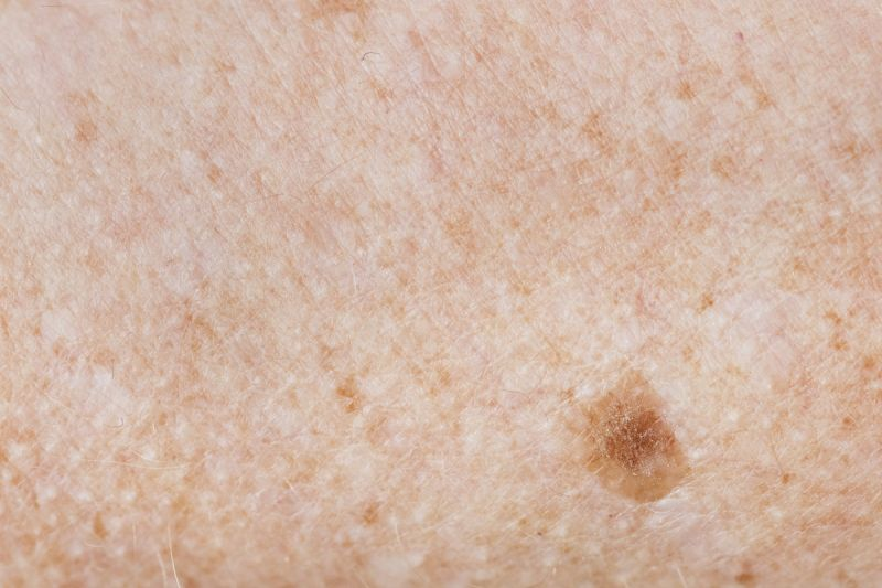 freckled skin / skin cancer